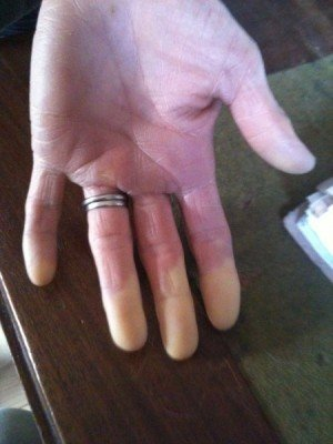 HAVS (Hand Arm Vibration Syndrome) explained